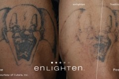 enlighten_Tattoo_Clown_Post12weeks3tx-1