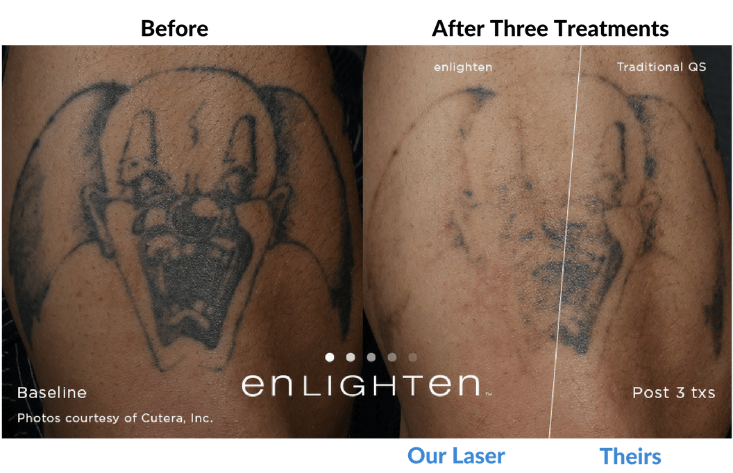 Laser tattoo removal portland oregon tattoo removal for Tattoo removal clinic